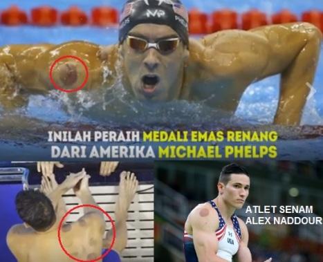 Atlet Olimpiade AS suka bekam