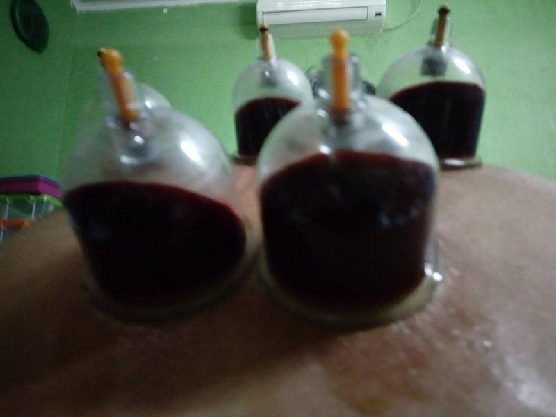 Donor Darah, Cuci Darah, dan Bekam