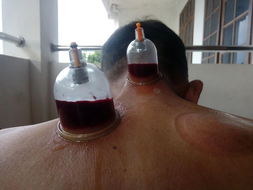 Bekam Untuk Gula Darah Tinggi