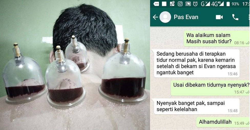 Curing Insomnia with Wet Blood Cupping (Hijama)